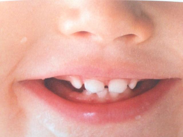 die ersten Zähne nach dem Zahnen